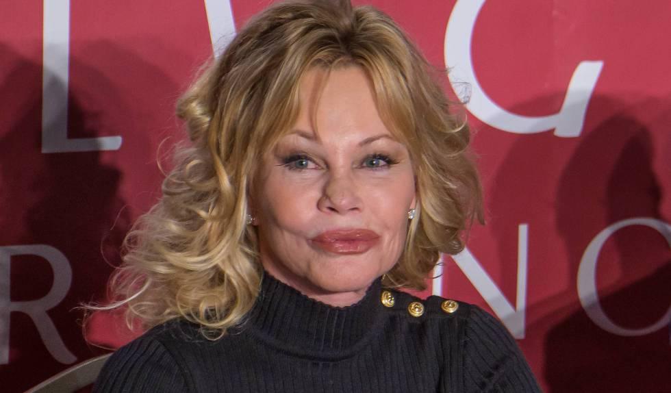 Botched up bodies celebrity plastic surgery